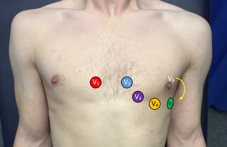 Image of a chest which demonstrates the correct placement of ECG leads.
